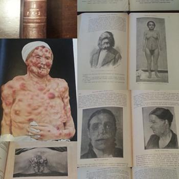 """""""Malattie cutanee e venereo-sifilitiche"""", Lesser-Strümpell, 1914 - Books"""