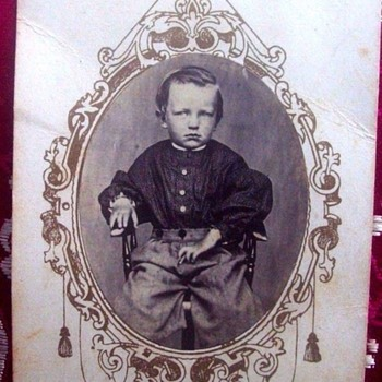 Civil War Era=1870s Photo, CDV --Little boy with possibly deformed hands?? - Photographs
