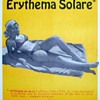 1972 - USAF Safety Poster - Sunburn