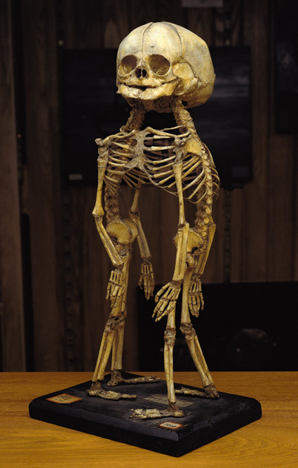 A skeleton of conjoined twins at the Mütter Museum in Philadelphia. (Via Morbid Anatomy)