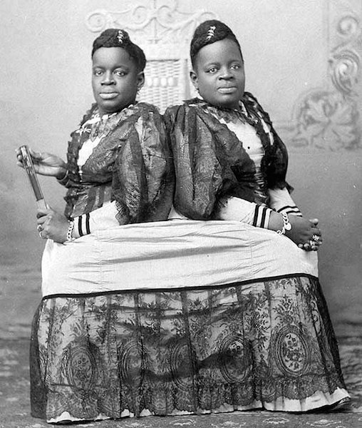Conjoined twins Millie and Christine McKoy, pictured in the 1890s, were born into slavery in North Carolina in 1851 and sold by their owner to a showman for $1,000. (Via Nineteenth-Century Disability, WikiCommons)
