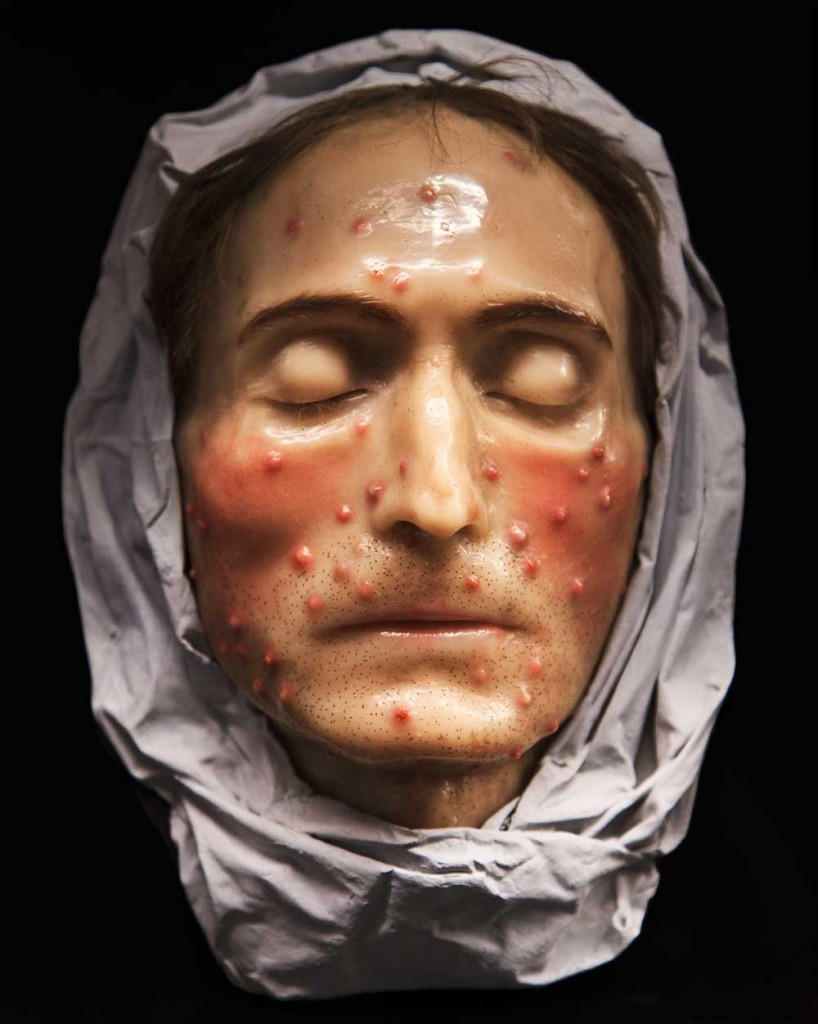 A wax head showing diseases of the skin, similar to those seen in Europe's popular museums. Courtesy Museo de la Medicina Mexicana, Mexico City. Photo © Joanna Ebenstein.