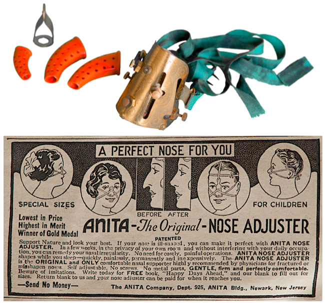 "The ""Anita"" Nose Adjuster promised to reshape one's nose without surgery, which author Maurice Collins describes as ""the ultimate in nasal quackery."""