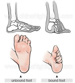 What foot binding did to the feet. (Via China Highlights)