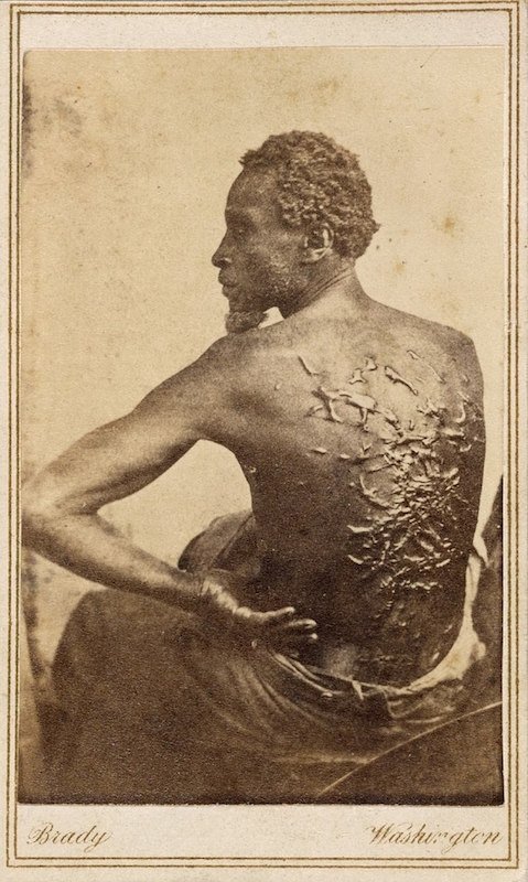 Civil War photographer Mathew Brady snapped this carte-de-visite of a slave named Gordon who escaped to a Union camp in Baton Rouge, Louisiana, in 1863 and revealed his horrific wounds from whippings. Gordon went on to serve as a Union sergeant in the war. (Via National Portrait Gallery, Smithsonian Institution)